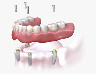 What is a Dental Implant | Dentium
